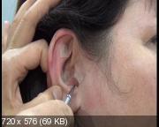 Особенности иглотерапии на ушной раковине. Мастер-класс (2017)